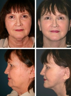 63 y/o Facelift Gibsonton Tampa Bay Florida achieved with full SMAS rotation advancement lipo sculpture with neck contouring with muscle sling corset tightening technique.