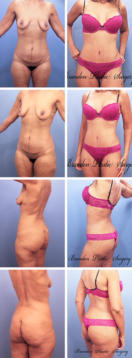 57 y/o Tummy Tuck New Tampa with lipo sculpting , corset waist tightening and derriere enhancement