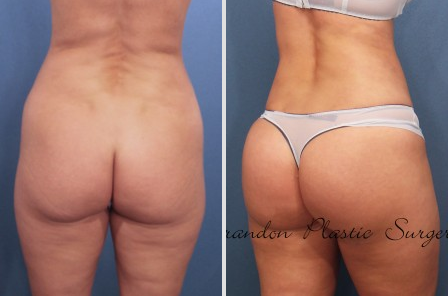 Buttock Augmentation Basics