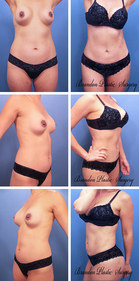 28 y/o Mommy Makeover Lake Wales Haines City Tummy Tuck with muscular waist Lipo sculpting and 350 cc silicone Breast Enlargement